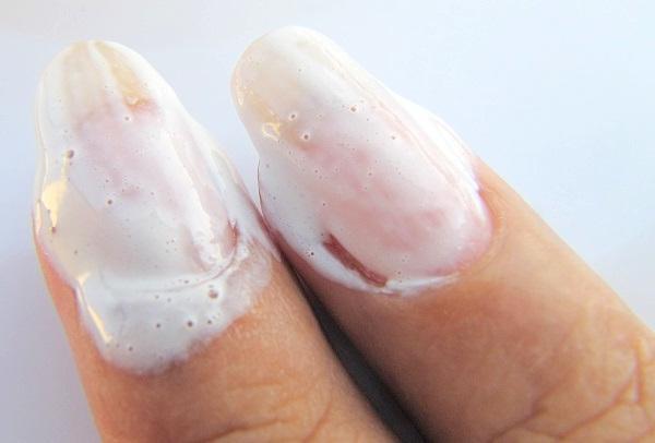 Белизна на ногтях