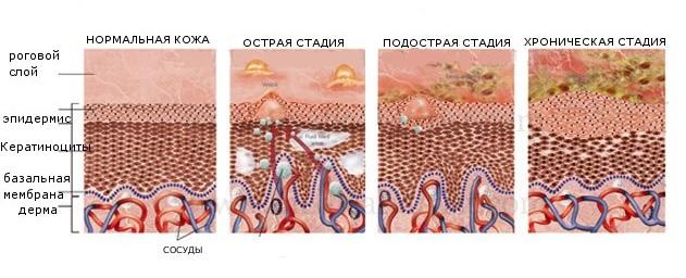 Стадии развития грибка