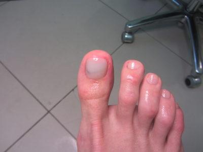 Ногти после педикюра