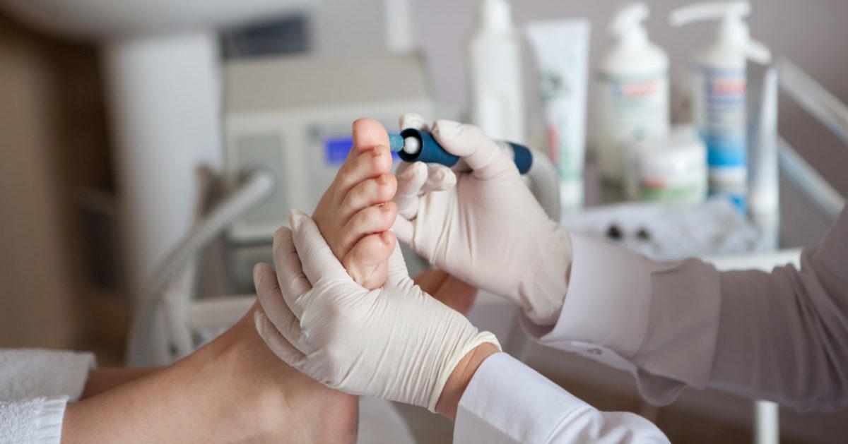 Грибок ногтей на ногах можно ли делать педикюр