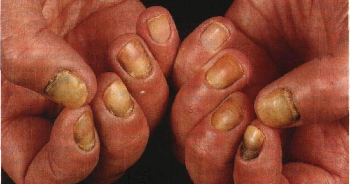Кандидоз ногтевой пластины