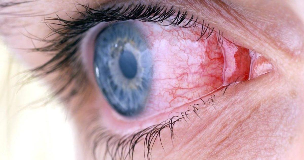 Грибок глаз: противогрибковые глазные капли и мази, симптомы и лечение