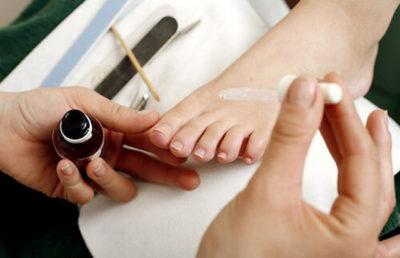 Нанесение Креолина на ногти