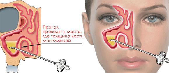 Прокалывание пазух носа