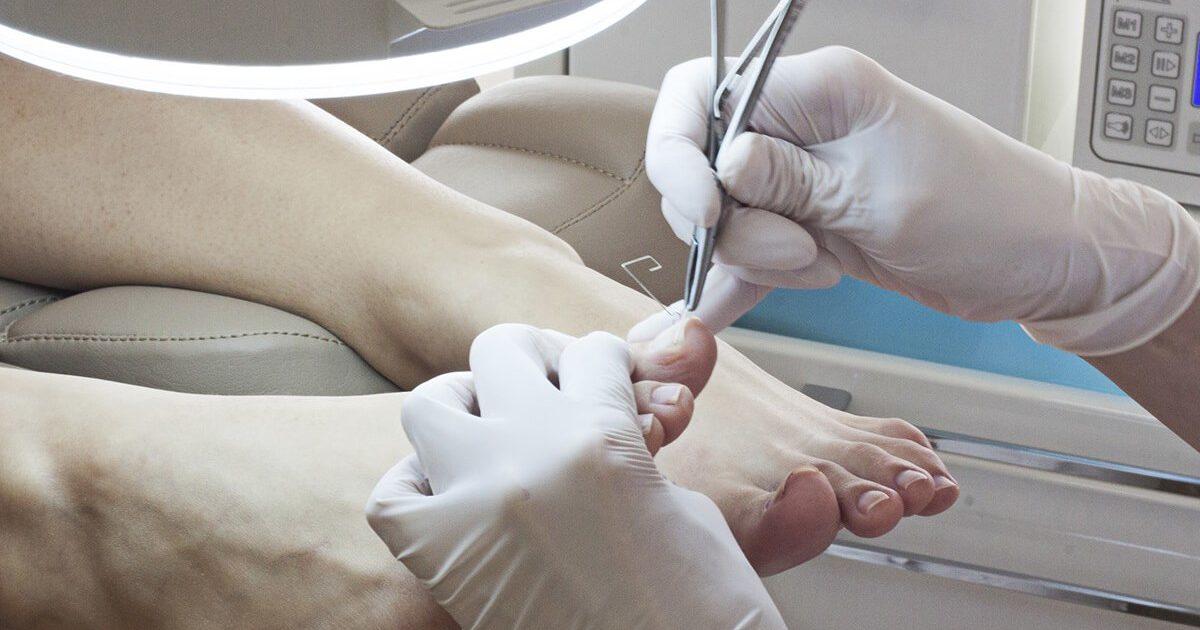 Удаление ногтевой пластины