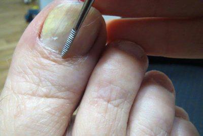 Анализ ногтя на грибок